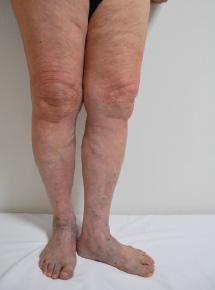 写真:下肢静脈瘤