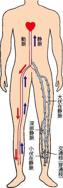 イラスト:下肢静脈瘤